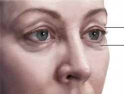 Göz altı morluklarına nasıl geçer